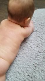 piel de bebé, pile atópica