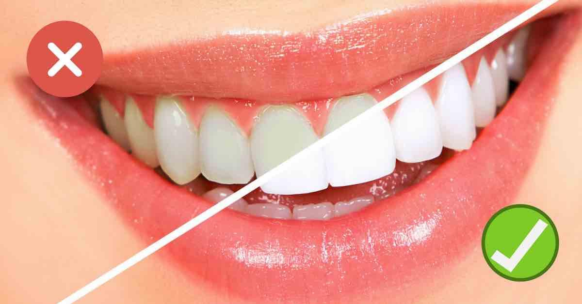 Vyzkoušejte kokosový olej na zuby pro krásný úsměv