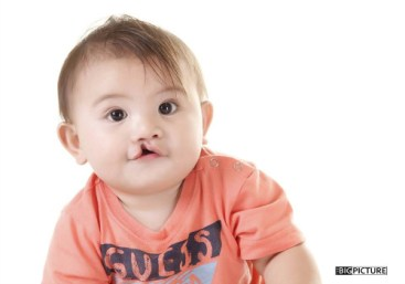 cleft palate philippines