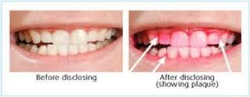 牙菌斑顯示劑前後比較