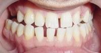 牙齒間隙過大