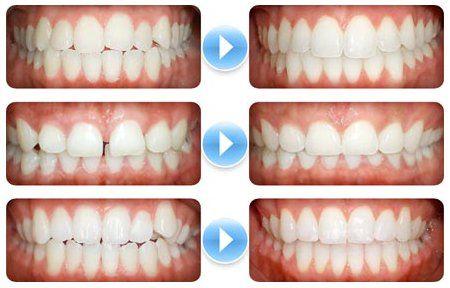 矯正前後牙齒變化