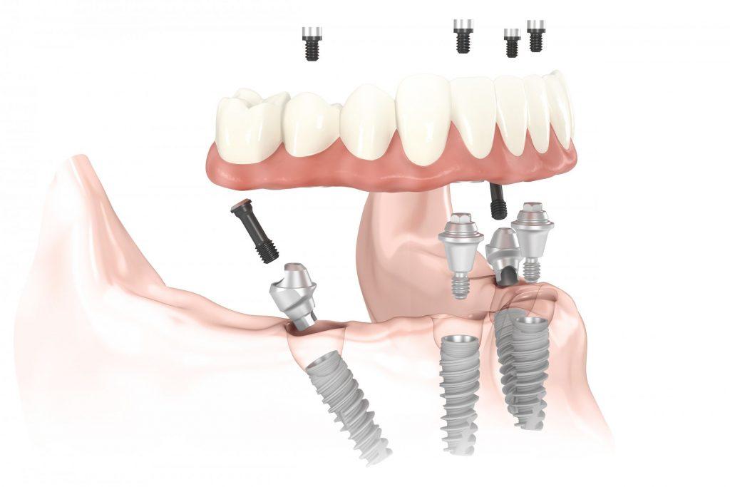 All-on-4植牙技術