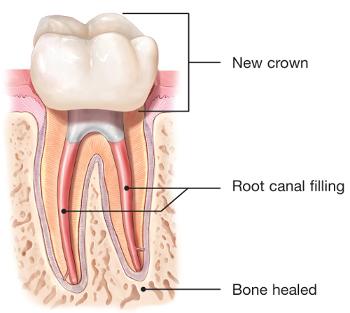 根管治療牙冠加強