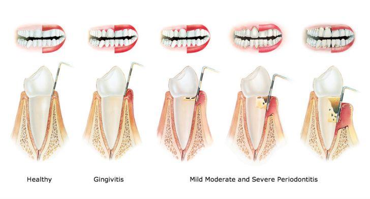 牙周炎測試