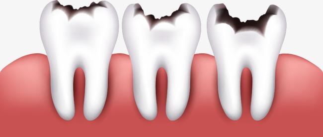 牙齒因蛀牙腐爛拔除