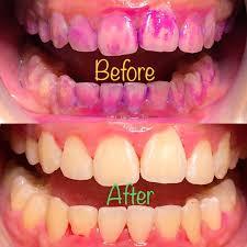 牙菌斑顯示劑使用前後
