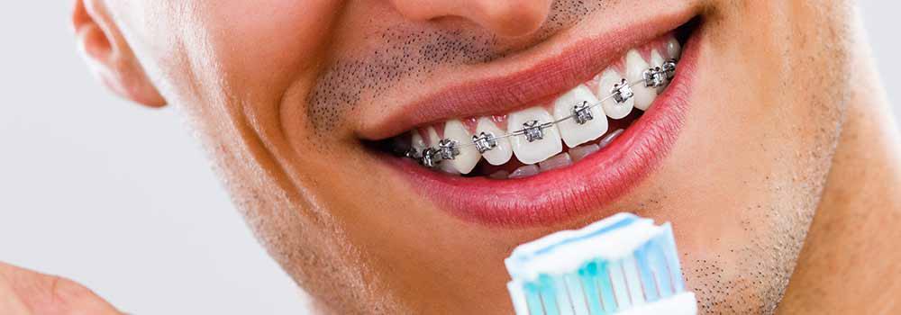 牙套專用牙膏推薦