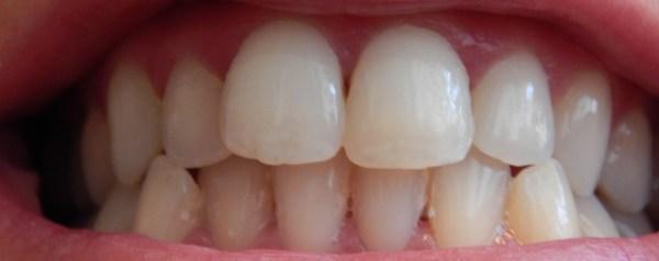 DSCN3834 600x238 - Oral-B :Traitement blancheur Perfection