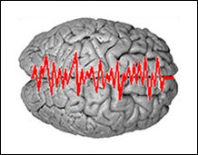 epilessia
