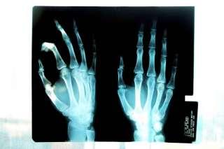 radiografia mani