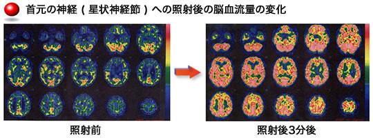 星状神経節への照射後の脳血流量の変化
