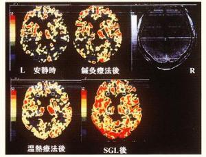 鍼とスーパーライザーの脳血流量の変化
