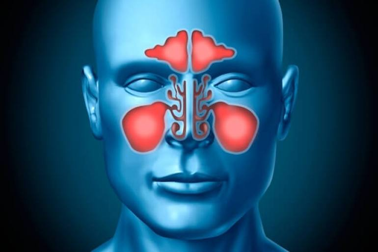 Are Sinus Infection Contagious