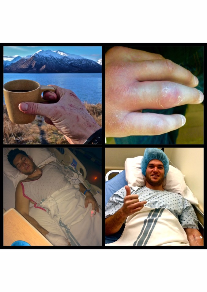 Bushwhacking through thick, thorny vegetation tore up my clothes and hands (top left).  As it turns out, a thorn punctured the tendon sheath in my finger and led to a nasty infection, causing my entire hand and arm to swell (top right).  Ultimately the infection required two emergency surgeries to save my hand (bottom left and right).