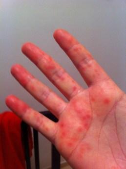 Diseasey hands