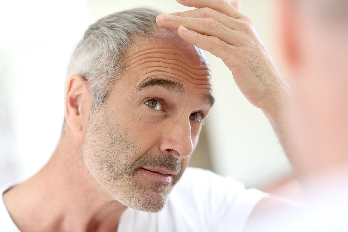 man looking at his hair loss in the mirror