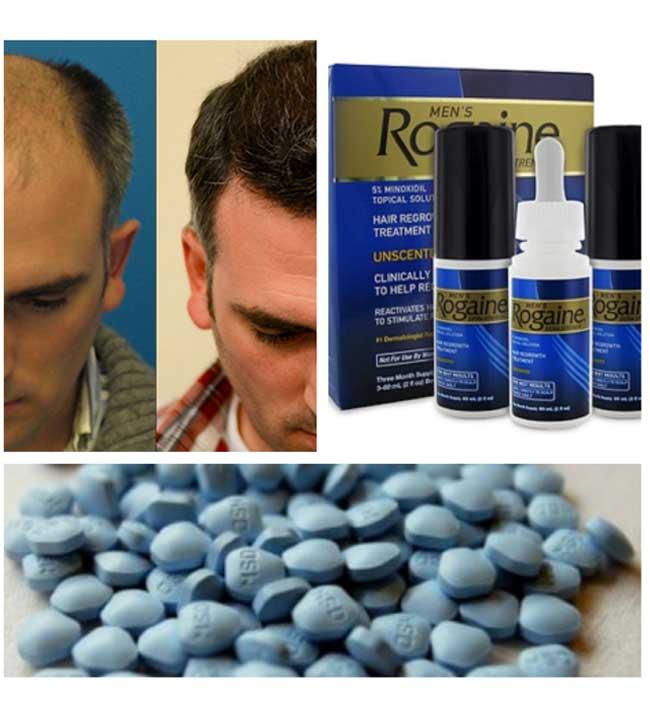 hair loss photo collage