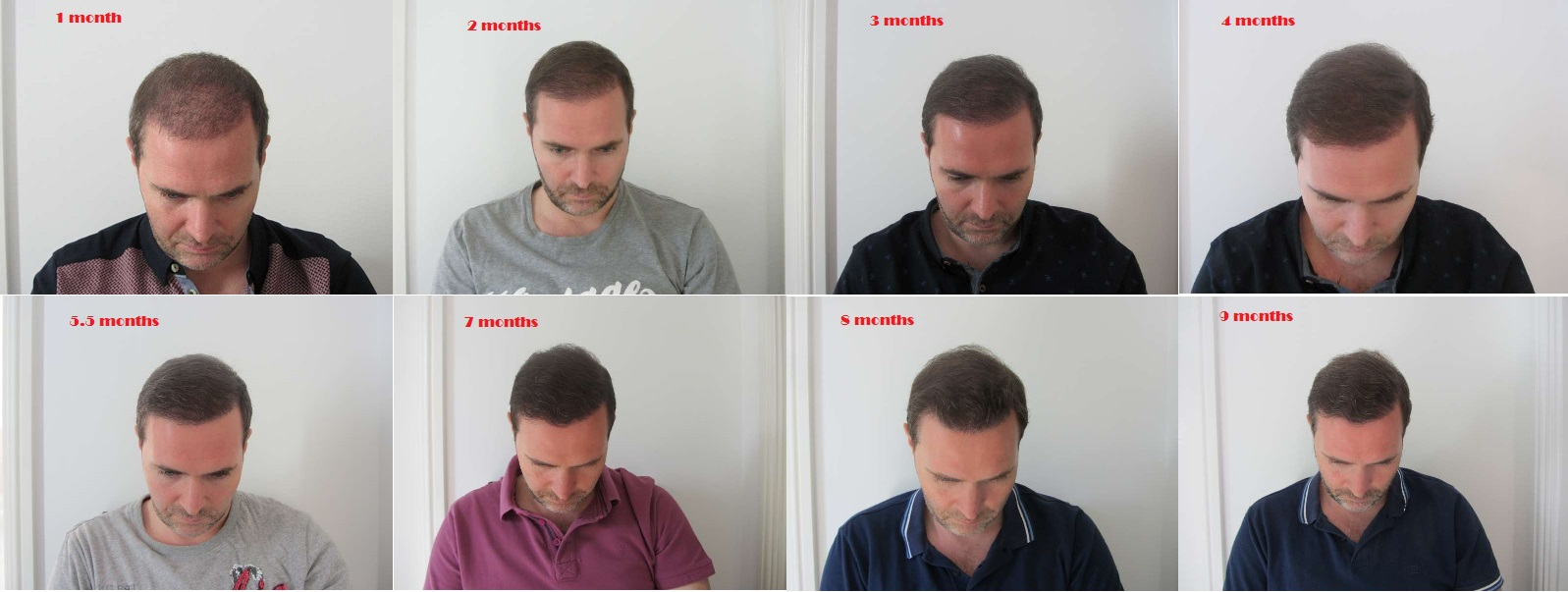 Hair Transplant Recovery Timeline