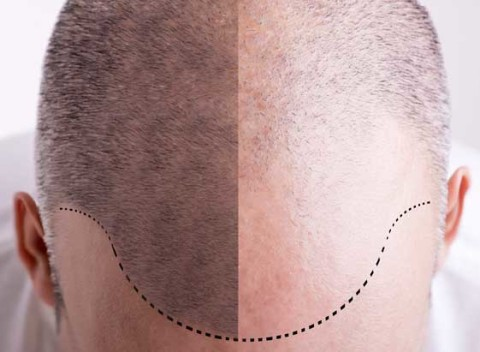 man with male hair loss