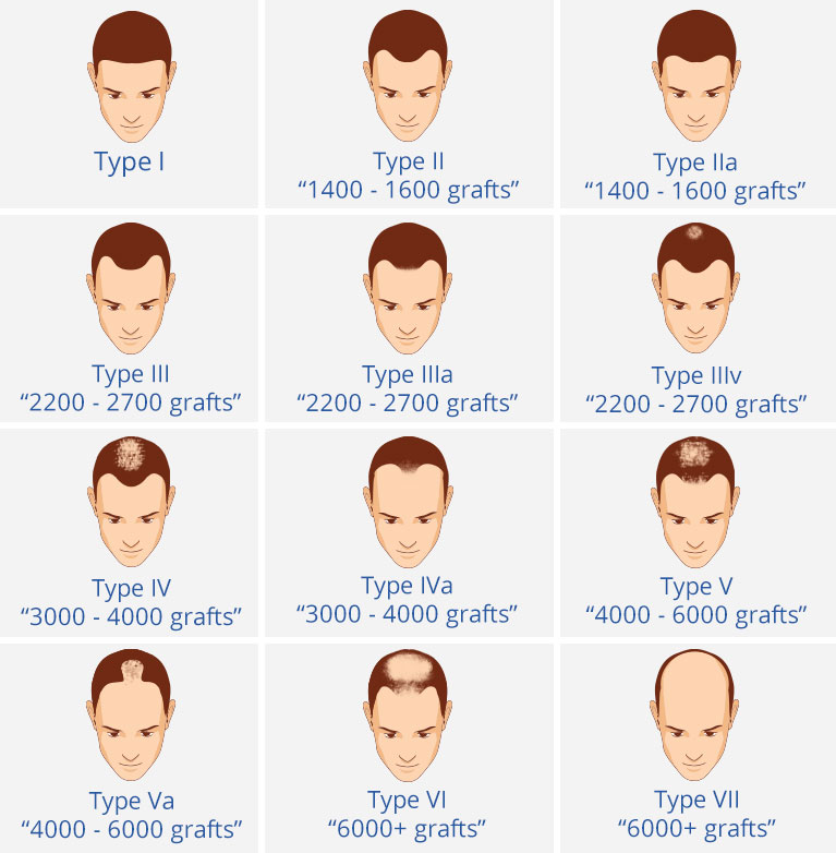 vector of hair loss norwood scale