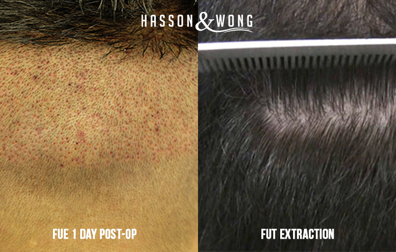 photo of FUE and FUT hair transplant surgery in Toronto