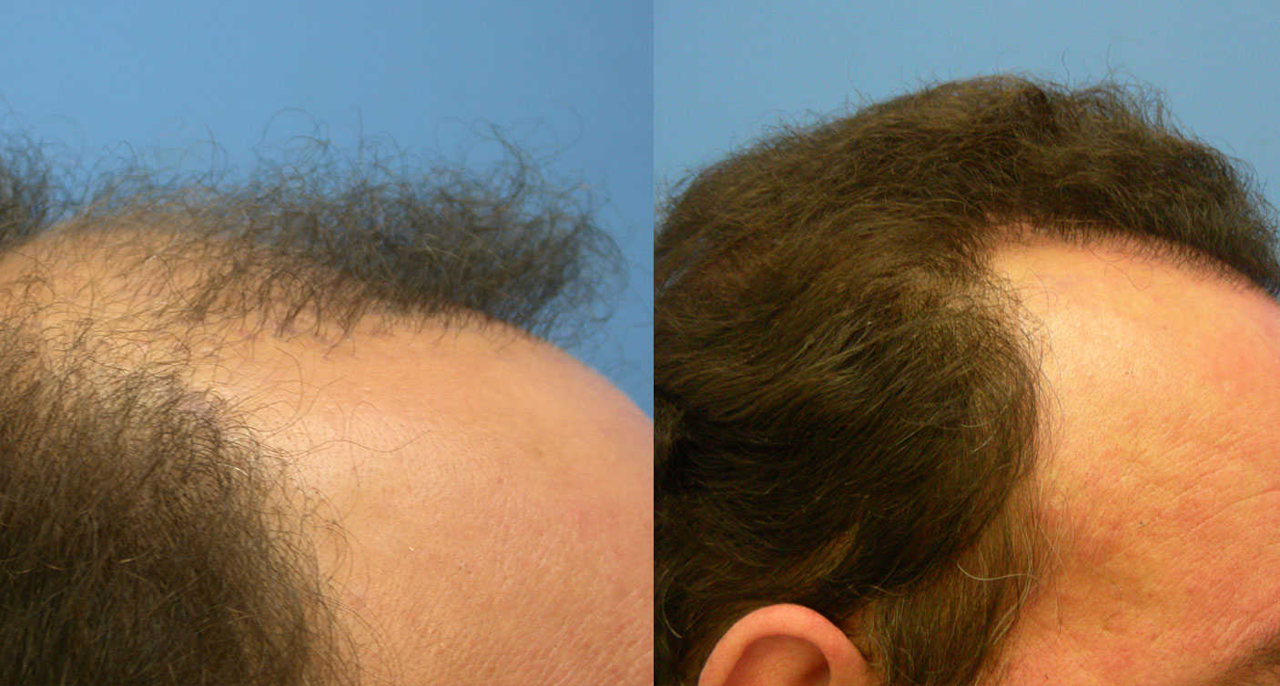 photo of Hasson and wong hair transplant patient hairline