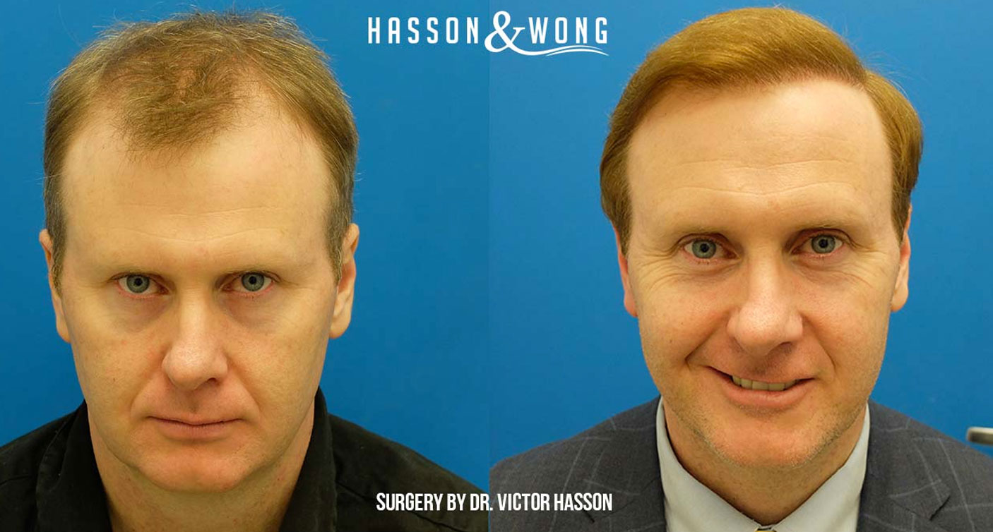 Hasson and Wong before and after hair transplant patient review