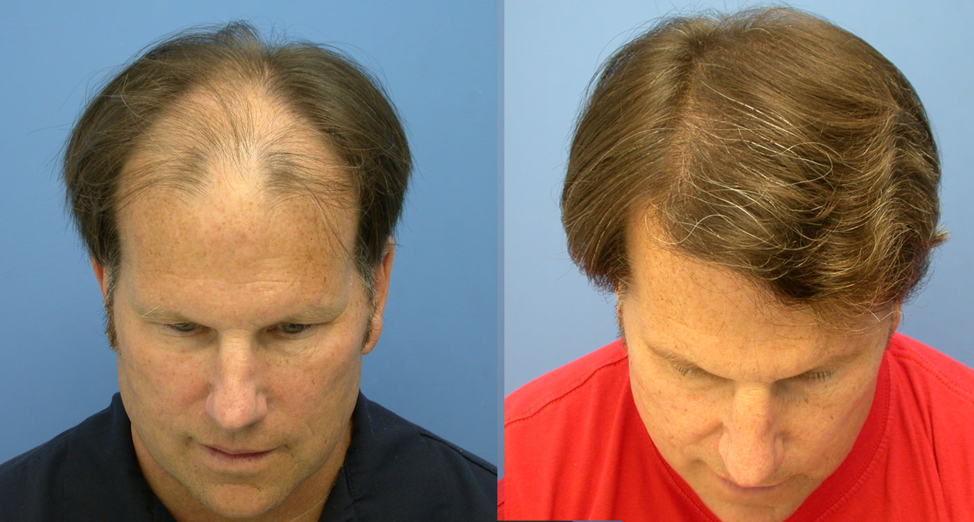 Dr. Victor Hasson hair transplant before and after photo of Bill