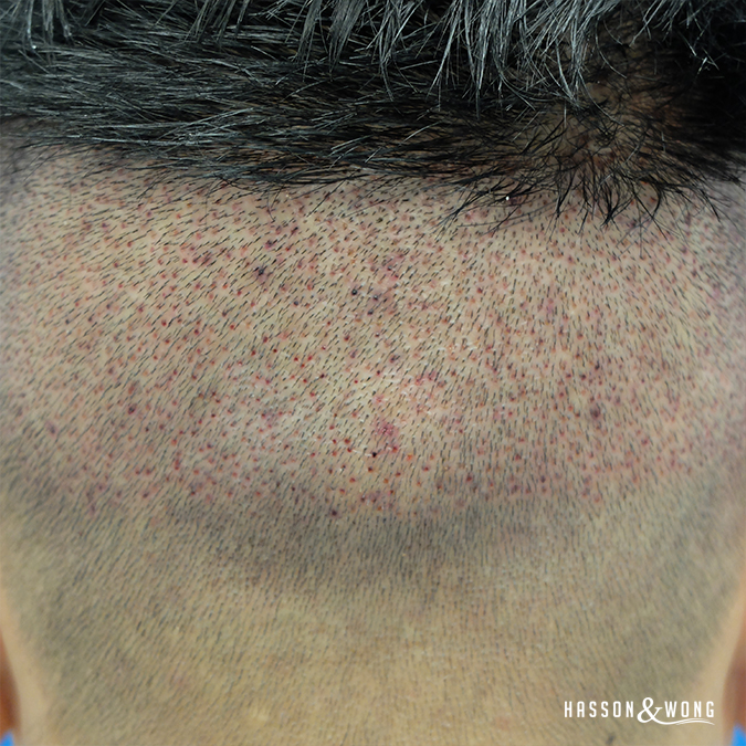 hair transplant fue patient. Back of patient's head immediately after surgery