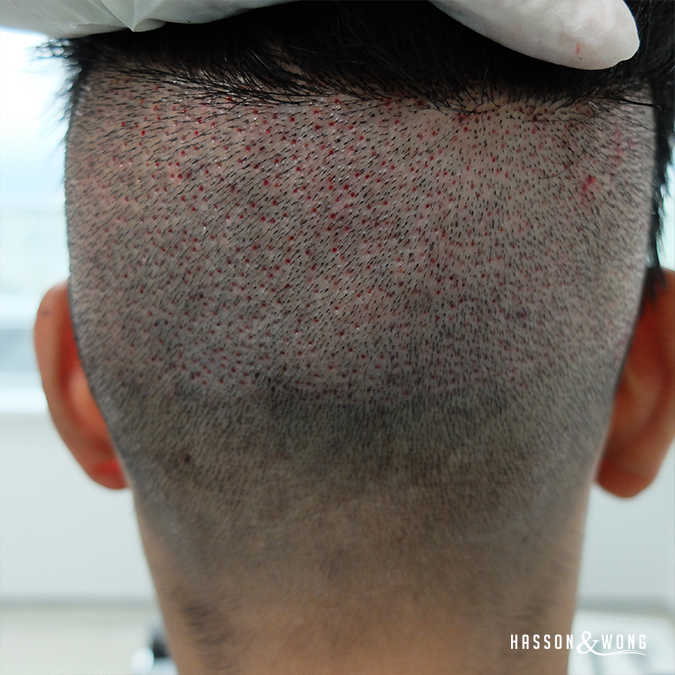 back of fue hair transplant surgery patient's head