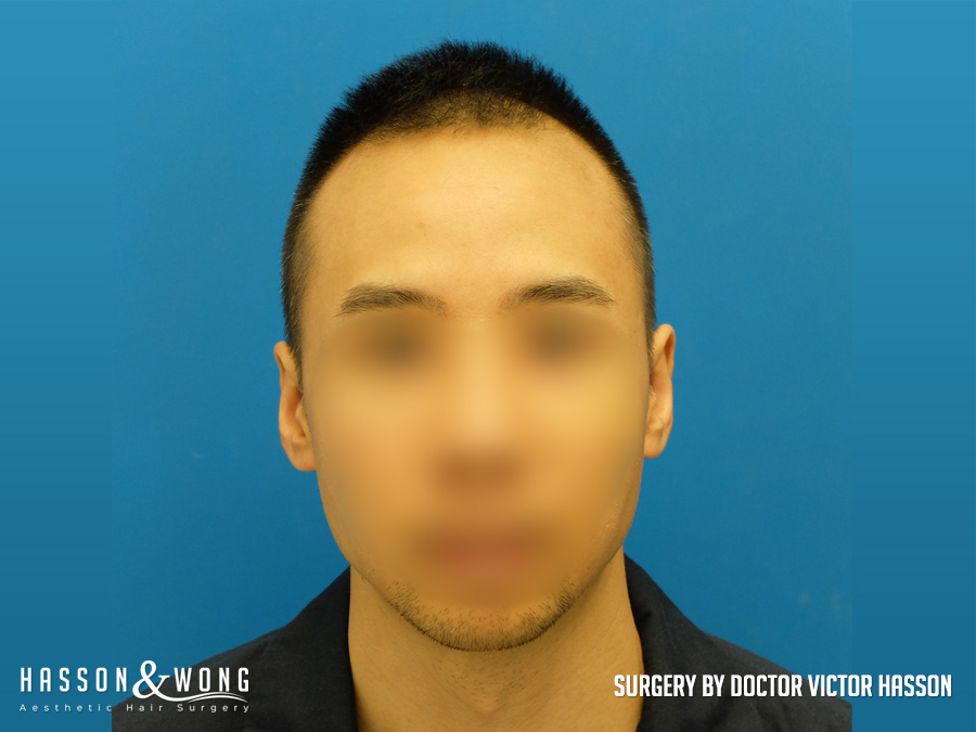 after hair transplant surgery of 2,274 FUE grafts front view AK