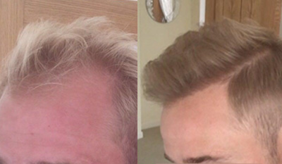 photo of hair patient before and after hair transplant side by side results