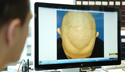 patient in a hair transplant consultation