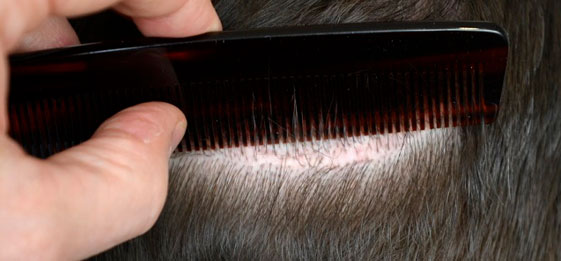 hair transplant side effect scars