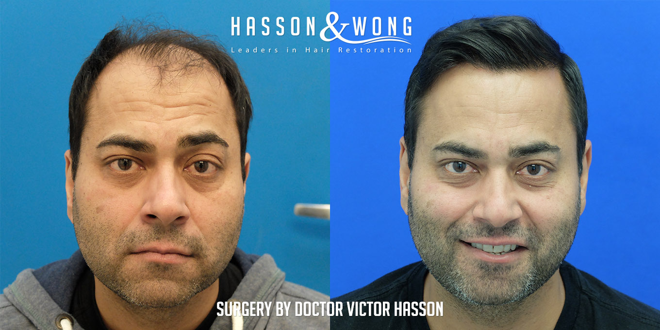 FUT hair transplant of 5474 grafts before and after of patient