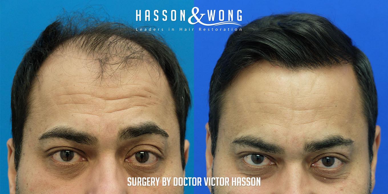 hair transplant patient after 5474 grafts via FUT surgery
