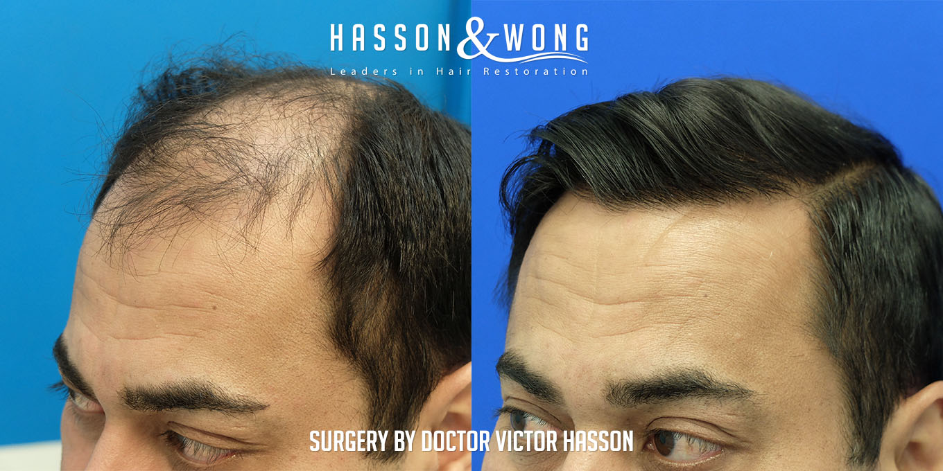 left temple of hair transplant patient after surgery of 5474 grafts