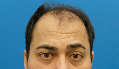 hair transplants and appearance