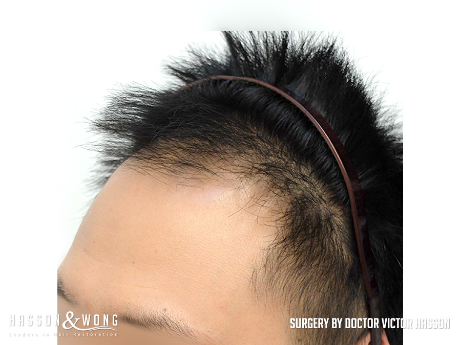 FUE hair transplant surgery photo left temple closeup view of patient's hair before 2575 FUE hair transplant grafts