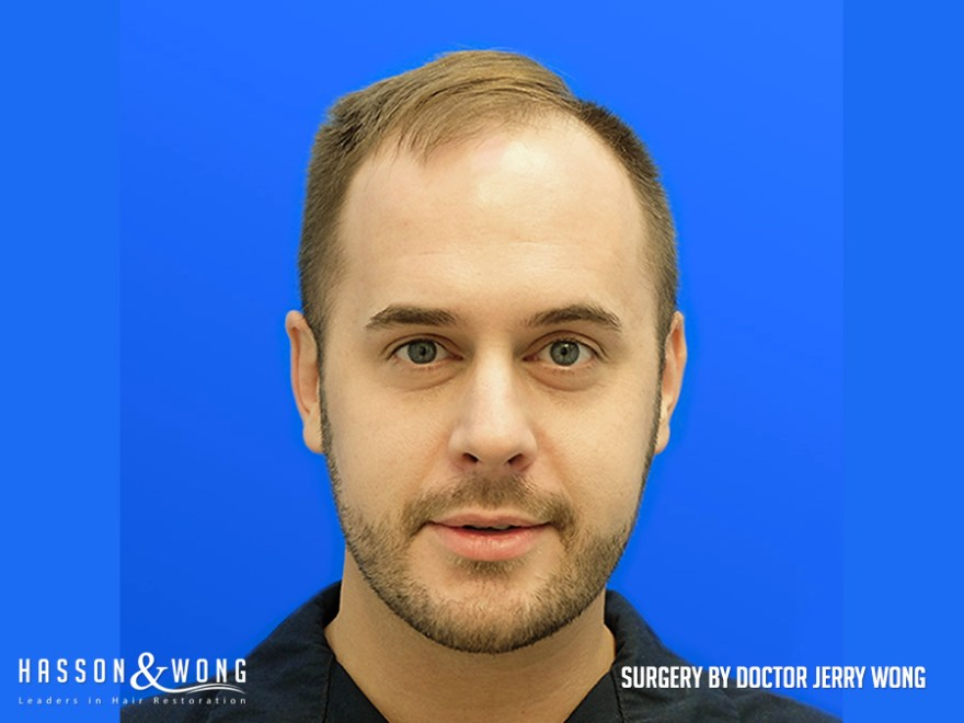 before hair transplant 3654 FUE grafts front view