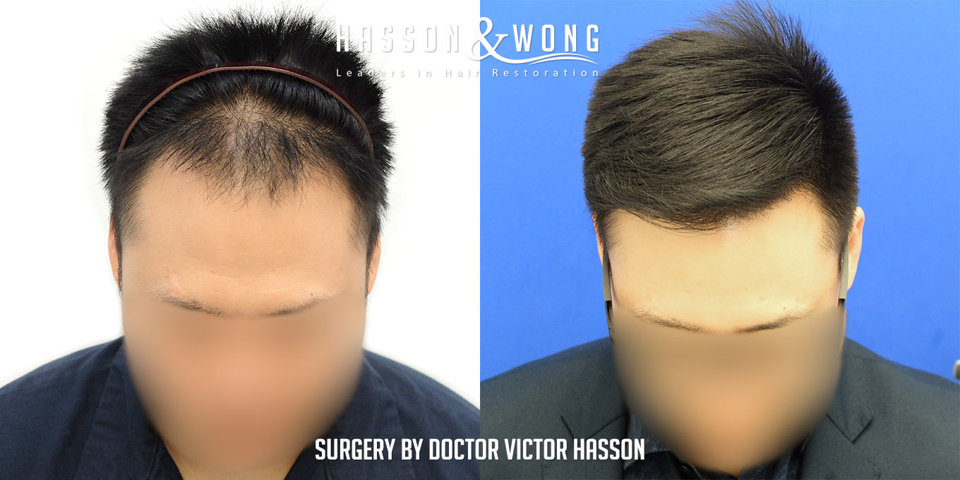 FUE hair transplant before and after 2575 FUE grafts front tilt view of patient's results after 2575 grafts
