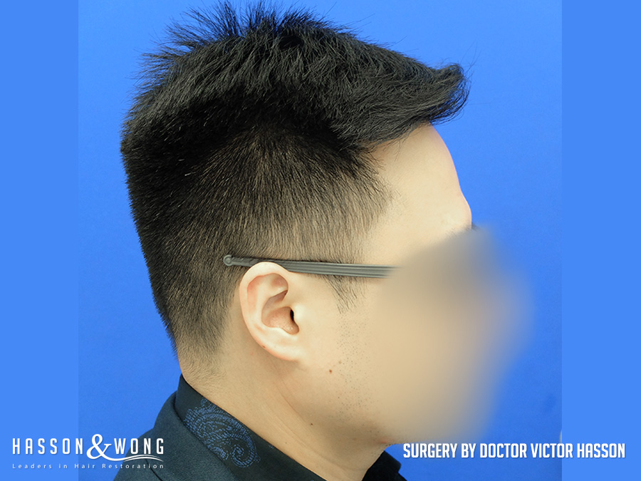 FUE hair transplant surgery photo right side view of patient's hair after 2575 FUE hair transplant grafts