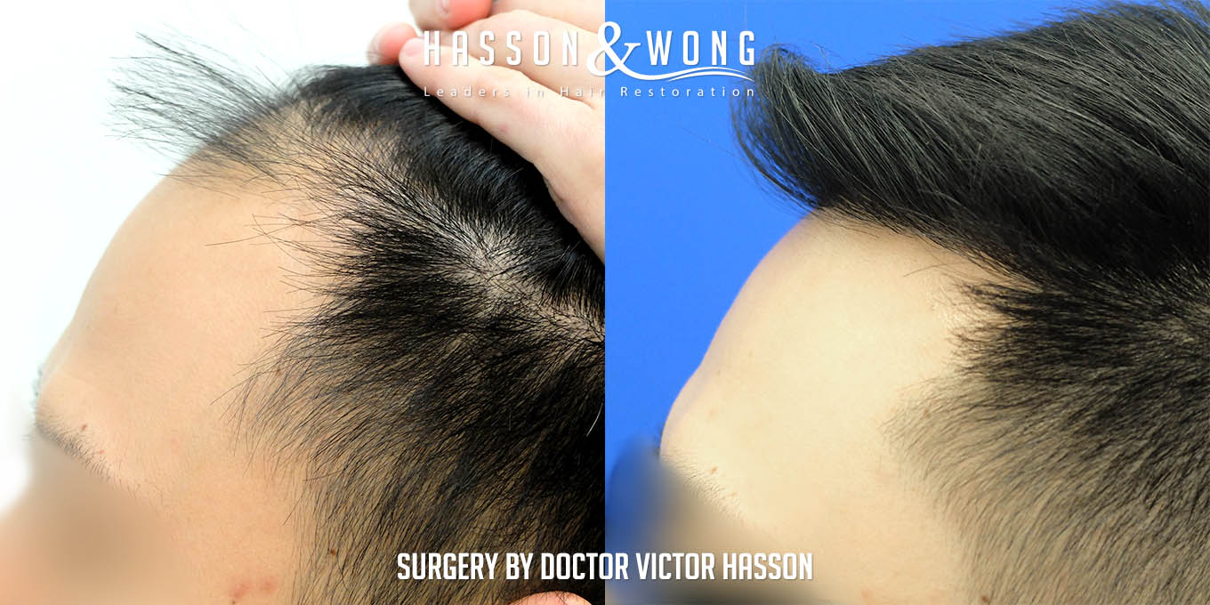 FUE hair transplant surgery pic close up of left temple side by side before and after of hair transplant patient after 2575 FUE hair transplant grafts