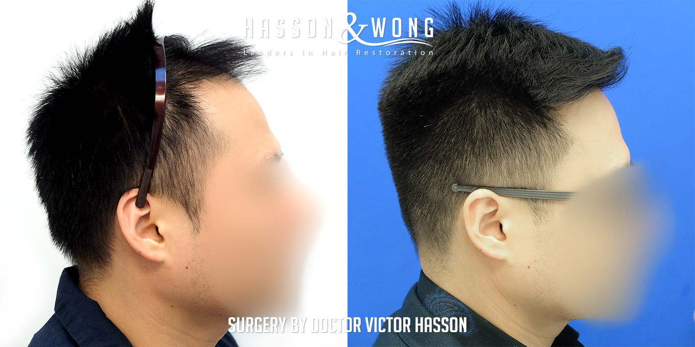 FUE hair transplant surgery pic right side by side before and after of hair transplant patient after 2575 FUE hair transplant grafts