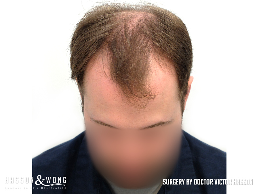 hair transplant before after 5,886 grafts front tilt view of hair transplant patient