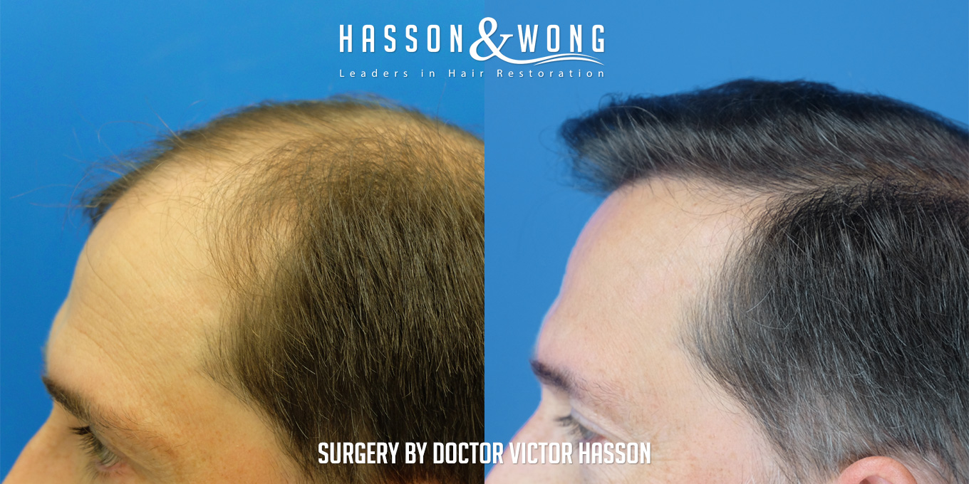 before and after hair transplant surgery of 6514 grafts side by side left view
