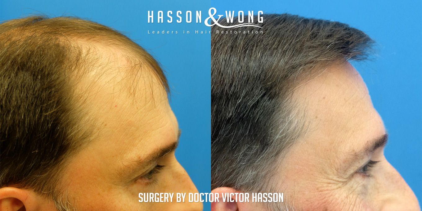 before and after hair transplant surgery of 6514 grafts side by side right side view close up