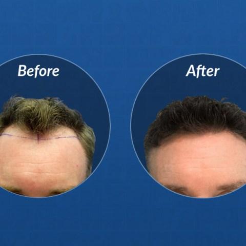 2717 graft hair transplant hair growth timeline