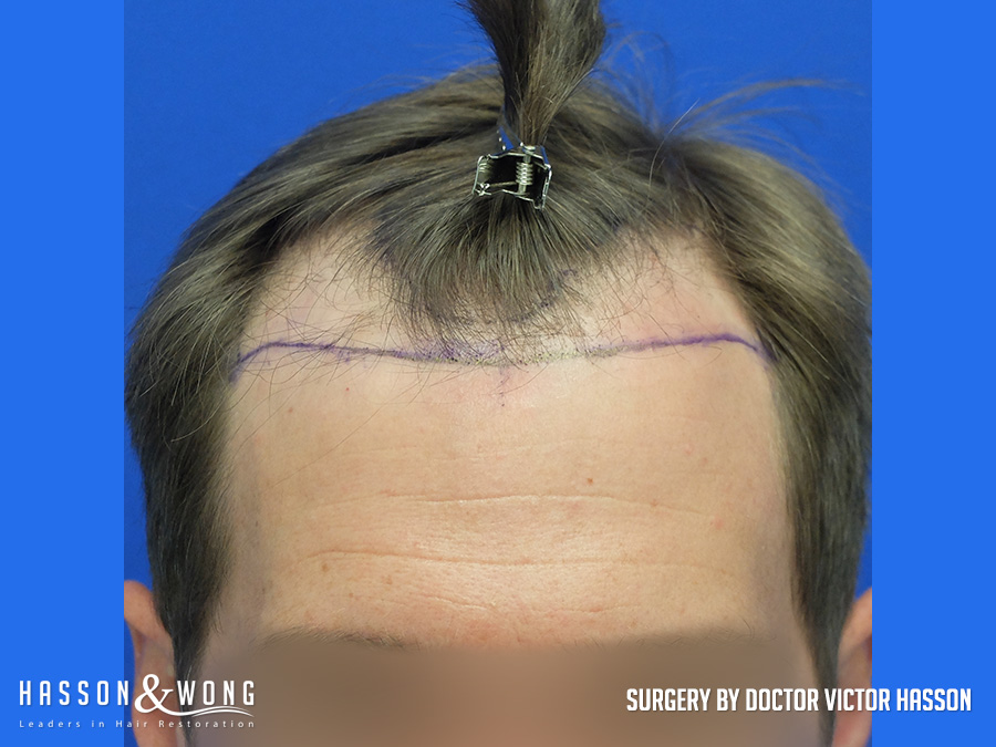 4035 graft FUE hair transplant close up of hair line before surgery